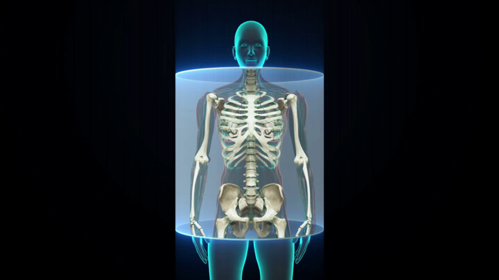 human X-ray | Balanced Bodycare